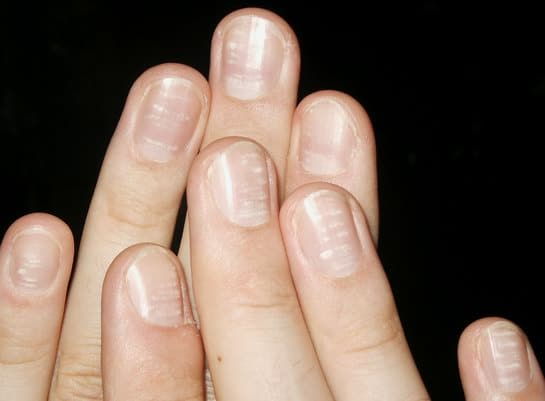 Zinkmangel Fingernägel