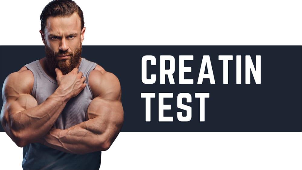 creatin test